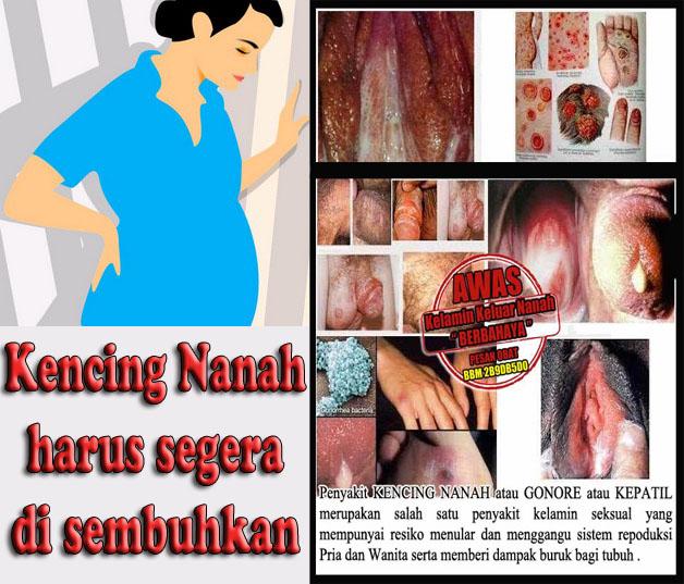 Pengobatan Kencing Nanah Gonore Herbal