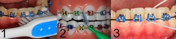 tips penjagaan braces, tips penjagaan gigi, cara penjagaan gigi, apa itu ortodontik, braces, pendakap gigi, hukum pakai braces, ustaz azhar idrus, kementerian kesihatan malaysia, myhealth ortodontik, tips gigi putih, video penjagaan braces, apa itu braces, jenis braces, pemakai pendakap gigi, amalan penjagaan gigi braces, gigi besi, lelaki pakai braces, tempoh pakai braces, perkara dilarang memakai braces, rawatan ortodontik, gigi jongang, ubat kumur berfluorida, ubat kumur Listerine, ubat kumur Colgate Plax, lelaki kacak 2014