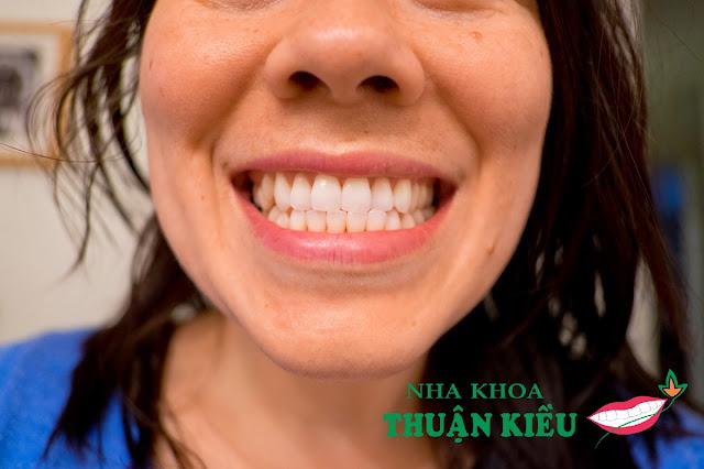 Làm trắng răng trong 30 phút bảo hành tẩy trắng 1 năm