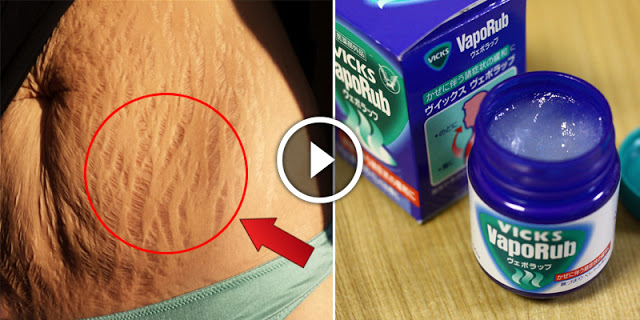 How To Remove Stretch Marks By Using Vicks Vaporub