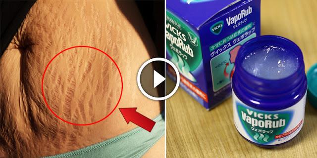 How To Remove Stretch Marks By Using Vicks Vaporub