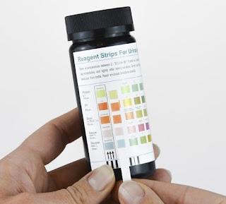 tips mendeteksi masalah kesehatan melalui warna urin