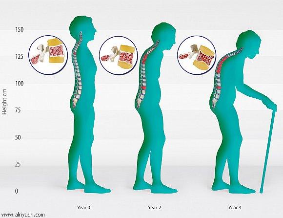مخاطر زيادة الوزن على العظام والعمود الفقرى