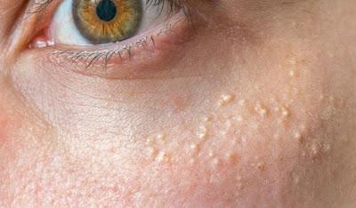 Comment enlever les grains de milium blancs ou gras du visage ...