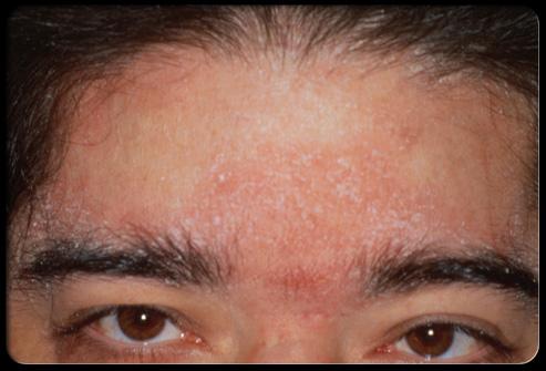 Adult Skin Problems 43