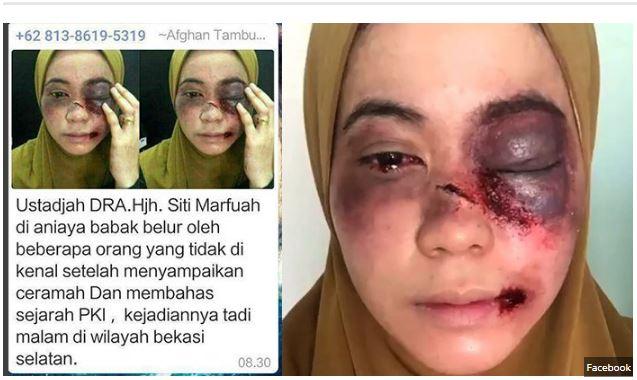 Astaga Ustazah Dipukuli di Bekasi Gara-Gara Ceramah PKI, Ternyata Inilah Kejadian Sebenarnya !