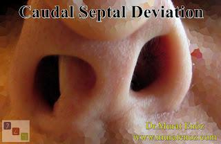 Caudal Septal Deviation