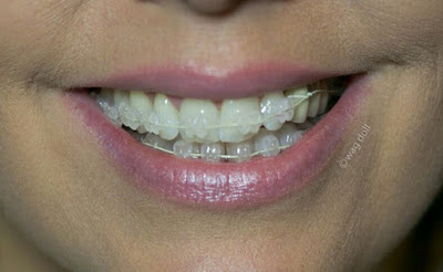 six month smile adult braces