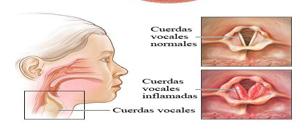cuerdas vocales inflamadas tratamiento