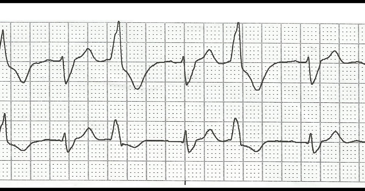 Float Nurse: Practice EKG Rhythm Strips 165