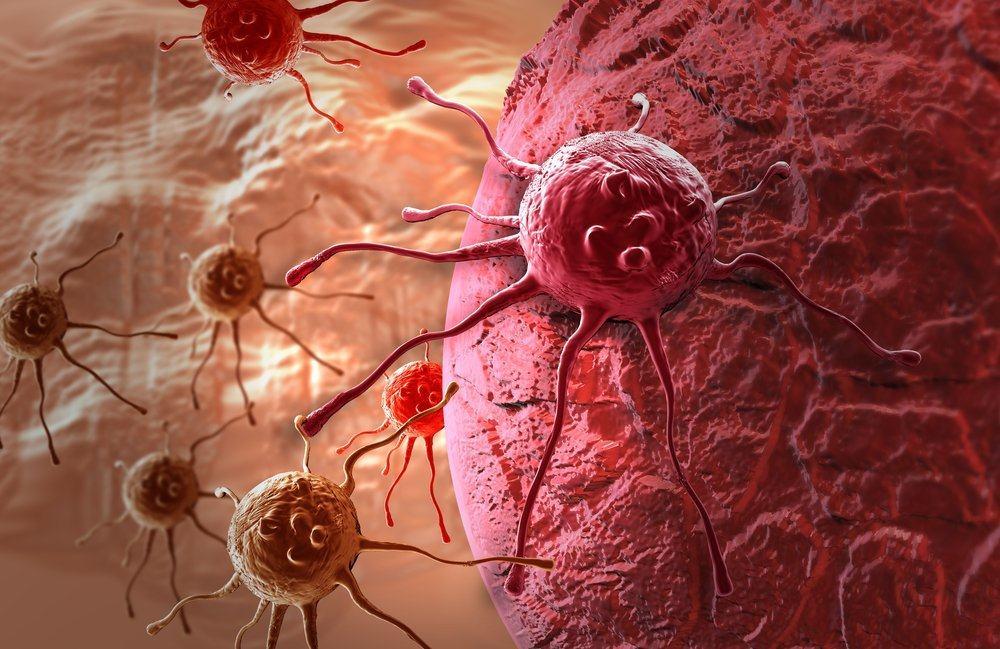 Gambar : Ilustrasi sel kanker