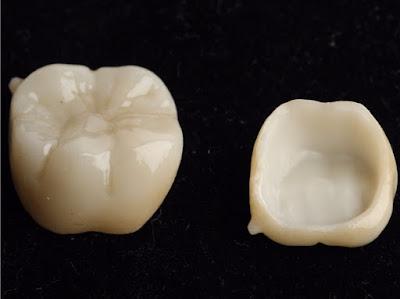 讓全鋯假牙擺脫進食貼片剝落的窘境