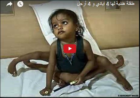 سبحانك ربي انك على كل شيء قدير ... طفلة هندية مع 4 ارجل و 4 ايادي ... شاهد كيف تم علاجها