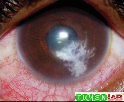 Fig. 2.3: Corneal ulcer, culture positive for Fusarium, in which the typical broad feathery infiltrate in the anterior stroma are progressing to become broader