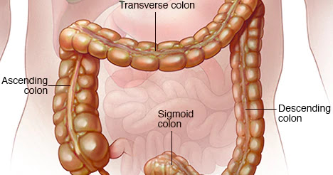 A Possible Effective Treatment for Ulcerative Colitis Using a Monoclonal Antibody