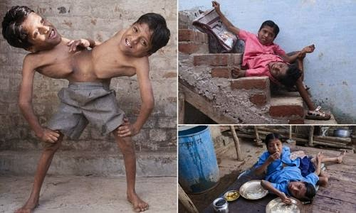 Amazing Indian Conjoined Twins : They Don't Want To Be ...