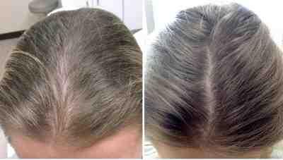 خلطة مجربة لتكثيف الشعر