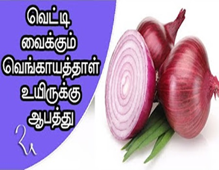Onion is a risk for life | Health Care Tips