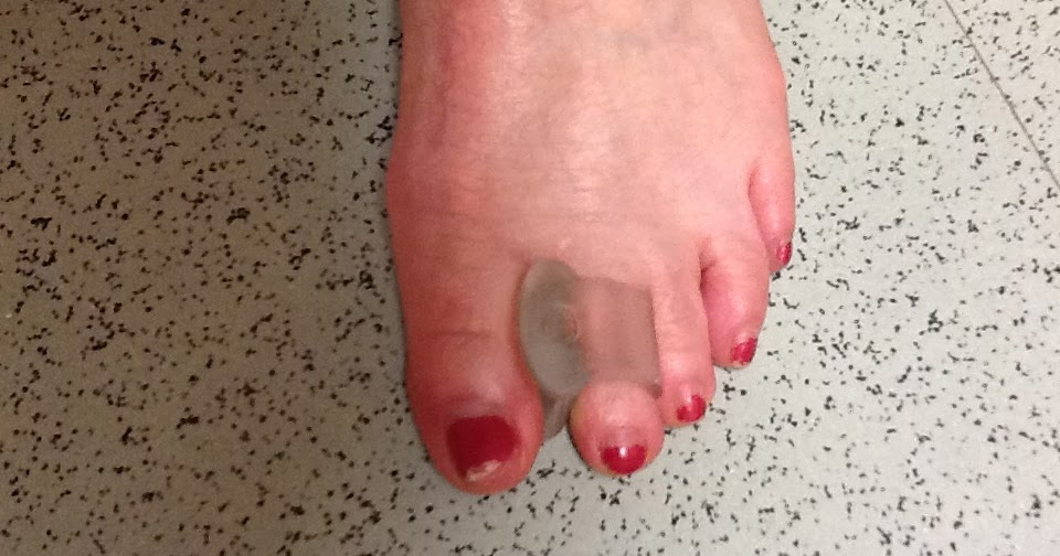 Foot And Ankle Problems By Dr Richard Blake Bunions Toe