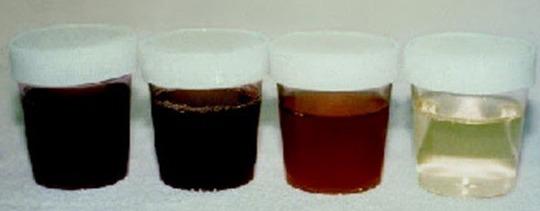 """Doença da """" Urina preta """" Bahia e Ceará - Causas :  Haff,Parechovírus,Bactérias,Toxinas,Peixe,Venenos Naturais ?!"""
