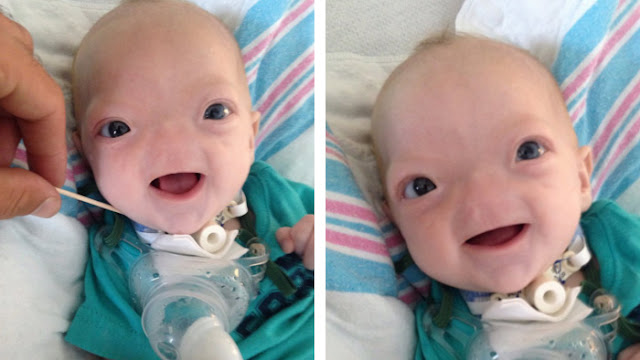 Baby Born Without Nose Is Very Cute