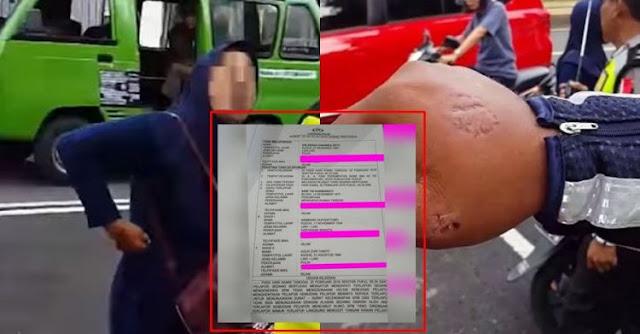 Emak-Emak yang Viral Karena Gigit Polisi yang Sedang Razia Akhirnya Dilaporkan