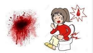 Gambar Cara mengobati BAB berdarah berwarna merah terang dan tidak nyeri