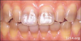 讓牙齒變黑的兇手 - 有機健康醫學百科