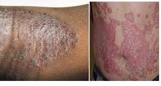 Nama Obat Gatal Untuk Ibu Menyusui, salep penyakit kulit eksim, obat eksim alergi, cara mencegah penyakit kulit gatal eksim, obat gatal2 apotik, penyakit kulit eksim gambar, gatal eksim kering di lutut