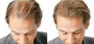 علاج تساقط الشعر ـ للدكتور جمال الصقلي