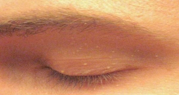 ¿Alguna vez te manchas poco de blanco en su cara como esto? Aquí está lo que podría significar ...