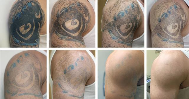 remover-tatuagem-antes-e-depois-metodo-natural