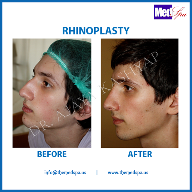 nose-rhinoplasty-surgery