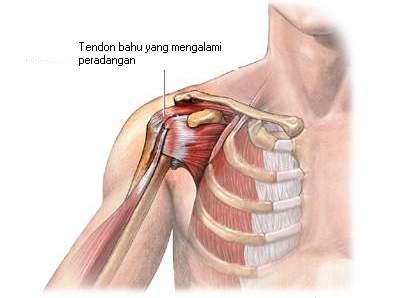 Sakit tulang tibia