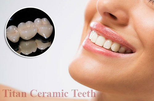 những điều nên biết về trồng răng sứ titan -4
