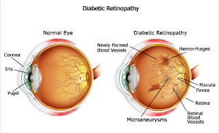 galucoma in diabetes,how diabetes lead to glaucoma,how does diabetes increase glaucoma
