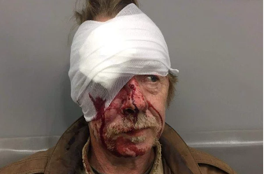 White Blues Musician Tom Hall Attacked by Five Blacks in Latest Knockout Game Attack in St. Louis