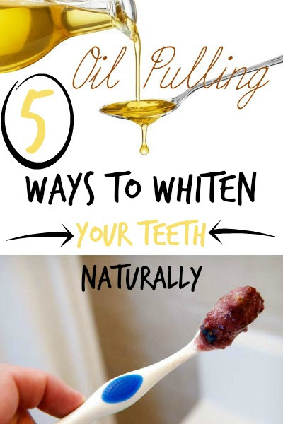 Natural Tooth Whitening Ideas: 5 Ways to Whiten Your Teeth Naturally
