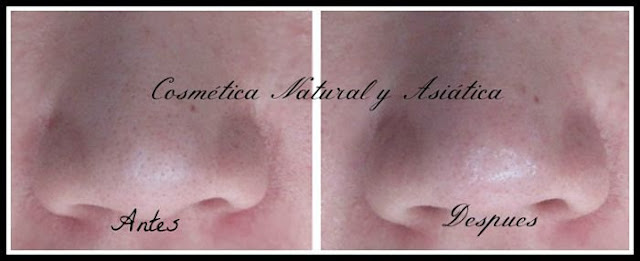 skinmiso-pore-beauty-nose-pack-resultados