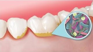 Cara Menghilangkan Plak Gigi yang Keras Secara Alami dengan Cepat