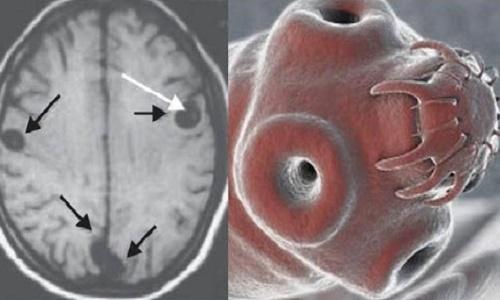 tu cerebro en parásitos