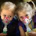 Κυστική Ίνωση.  Παγκόσμια Ημέρα. Τα νεότερα για την νόσο