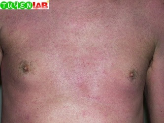 Fig. 5.20  Erythroderma from atopic dermatitis.