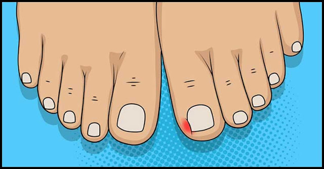 Easy-To-Try Home Remedies For Ingrown Toenails
