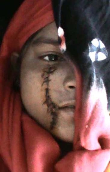 The young man stabbed with knife, came 15 stitches, Haryana Police not hearing the hearing