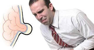 Göbek Fıtığı Ağrısı Nasıl Geçer