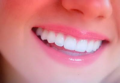 Cara Hilangkan Karang Gigi Sendiri Tanpa Harus Ke Dokter
