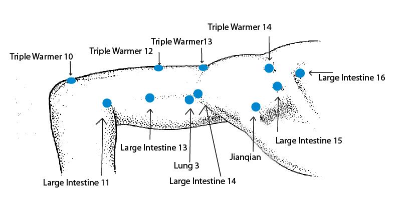 Acuthink: Acupuncture For Frozen Shoulder