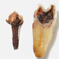 kuru karanfil, çürük diş