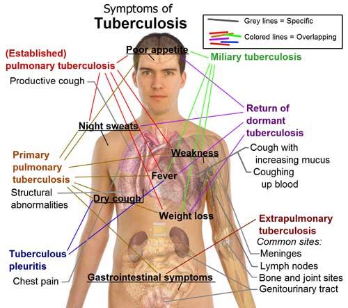 Kesihatan Dan Badan Kita Penyakit Tibi
